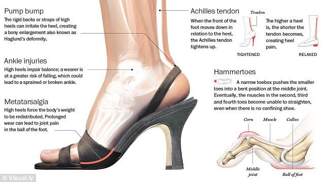Ouch! That's why they call them killer heels: Why nine in ...
