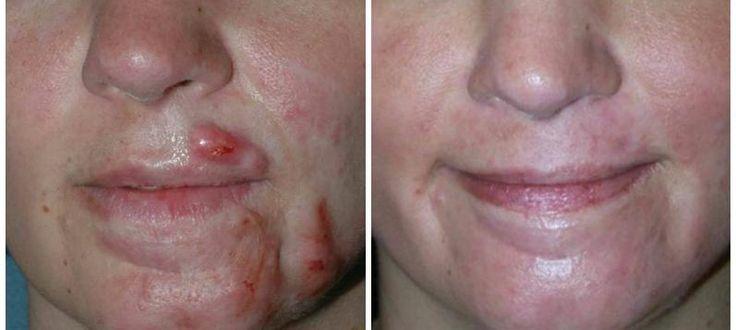 avis produits jovees acné bébé