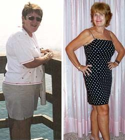 Nutrisystem before and after men brazilian
