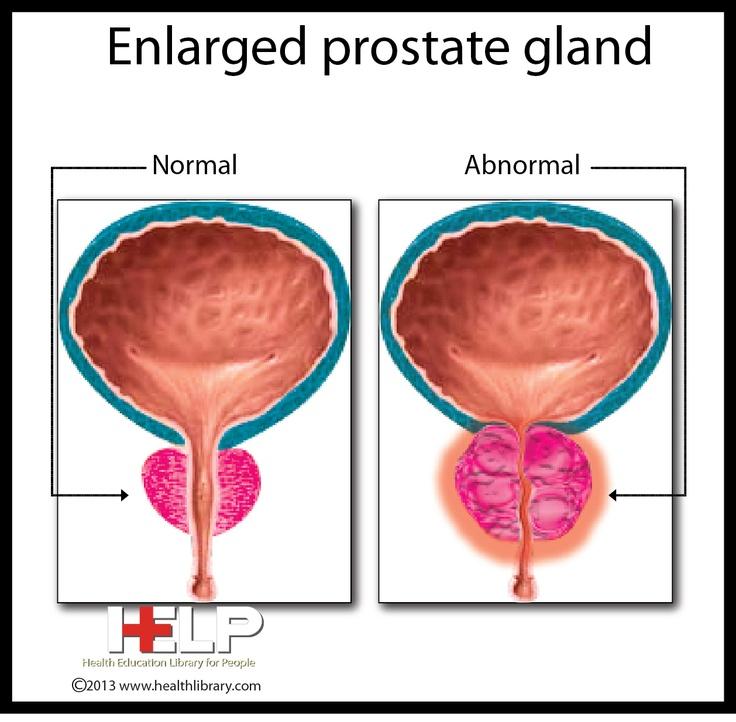 Male anatomy prostate gland