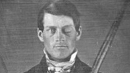 Phineas Gage. Survived an iron rod being driven through his head. badass.