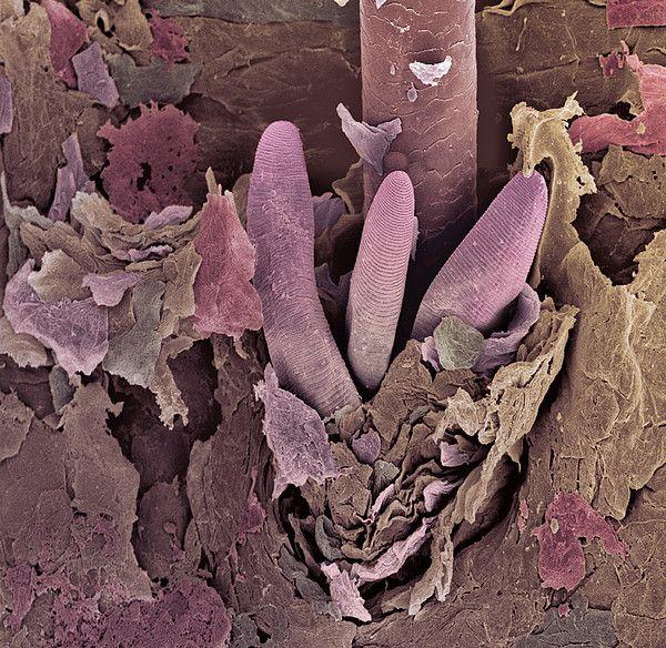 Mites on human scalp