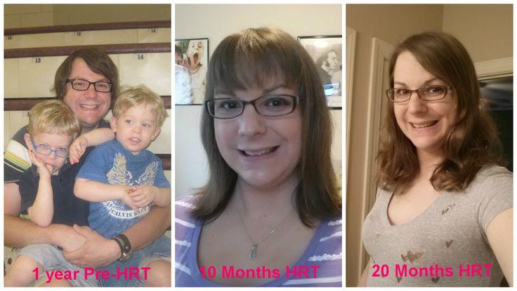 MTF Hormone Timeline