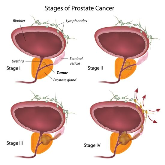 Home remedies for prostate cancer prevention quotes