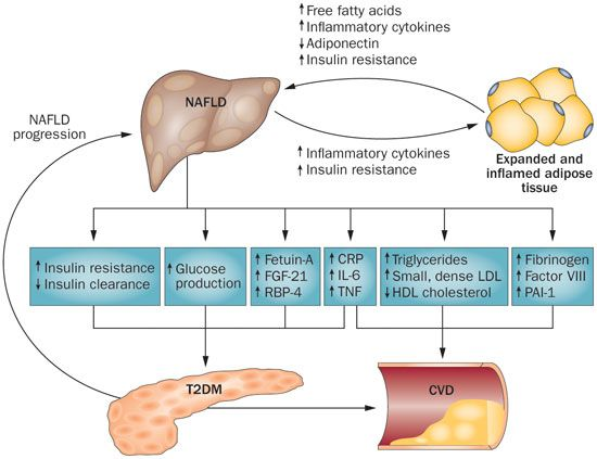 Relation Between Diabetes And Fatty Liver And Tips To Prevent It In Hindi