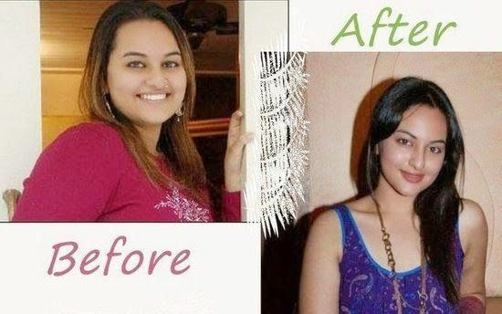 Weight loss before after photos weight loss success how to lose