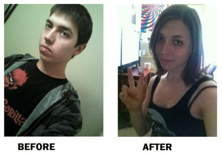 before and after her transformation (HRT in 2012-2013). | MTF Before