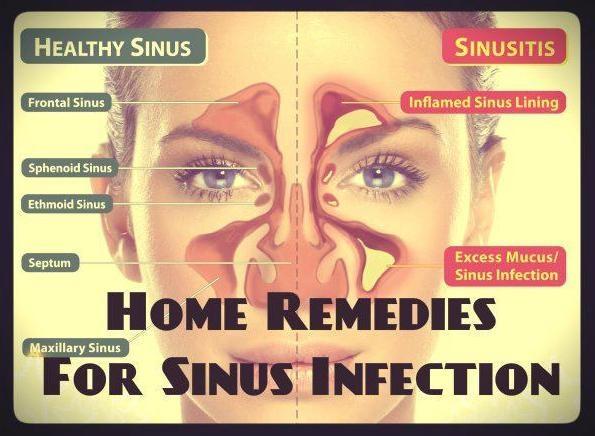 keflex antibiotic for sinus infection