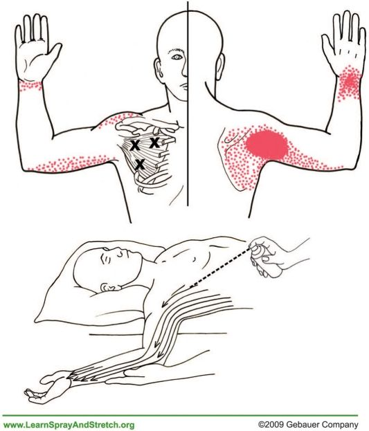 Frozen shoulder therapie