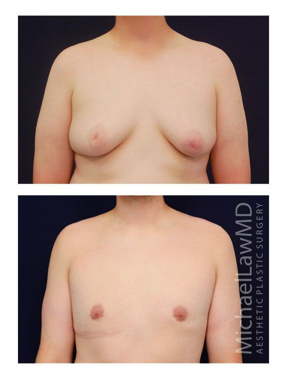 breast tissue under nipples men