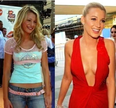 plastic surgery photos before and after http www surgeryafter com nose ...
