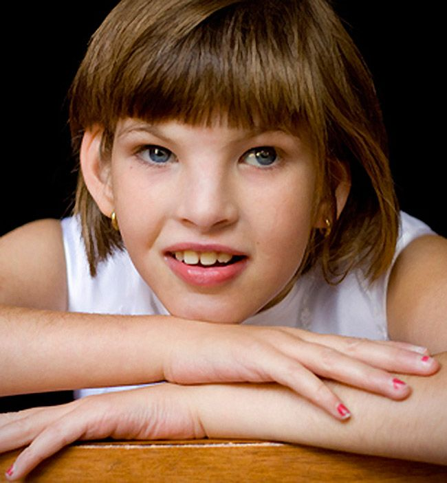 What are the symptoms of cri du chat syndrome?