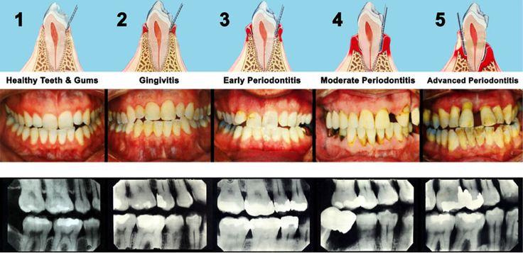 23 Ways To Stop Gum Disease