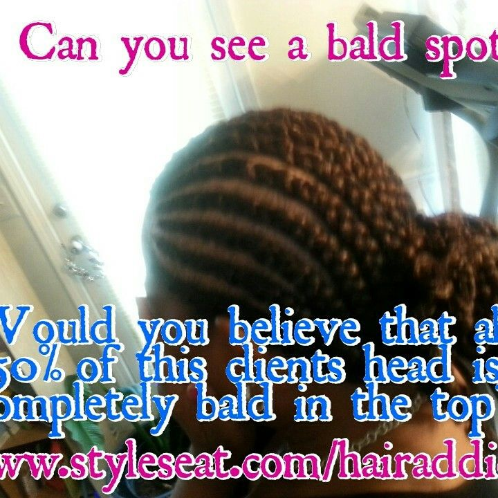 ... for alopecia | African American Protective Hair Styles by Crys