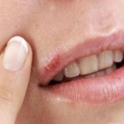 what is the best medicine for cold sores lip