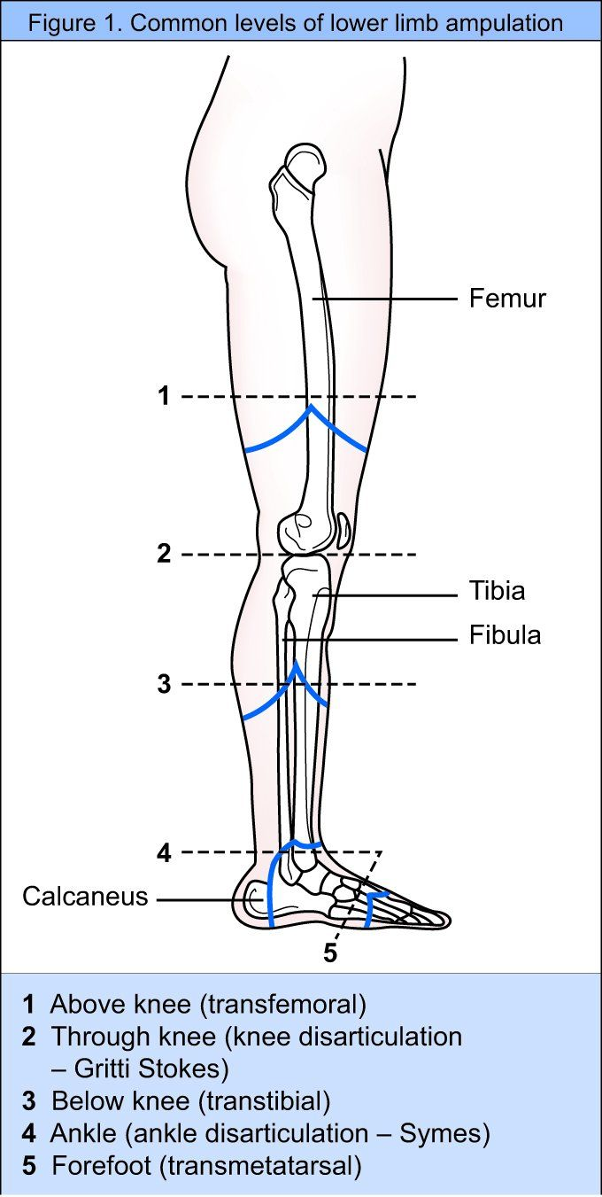 lower limb amputation and prothesis