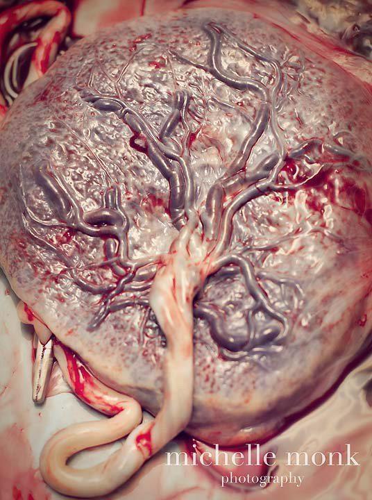 El árbol de la vida (una placenta).