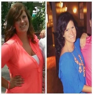 Weight loss 2 weeks after gastric sleeve