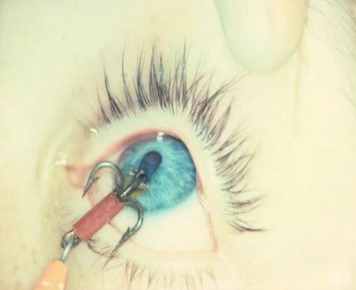 Penetrating eye injury with a fish hook science medicine for Fish eye hook