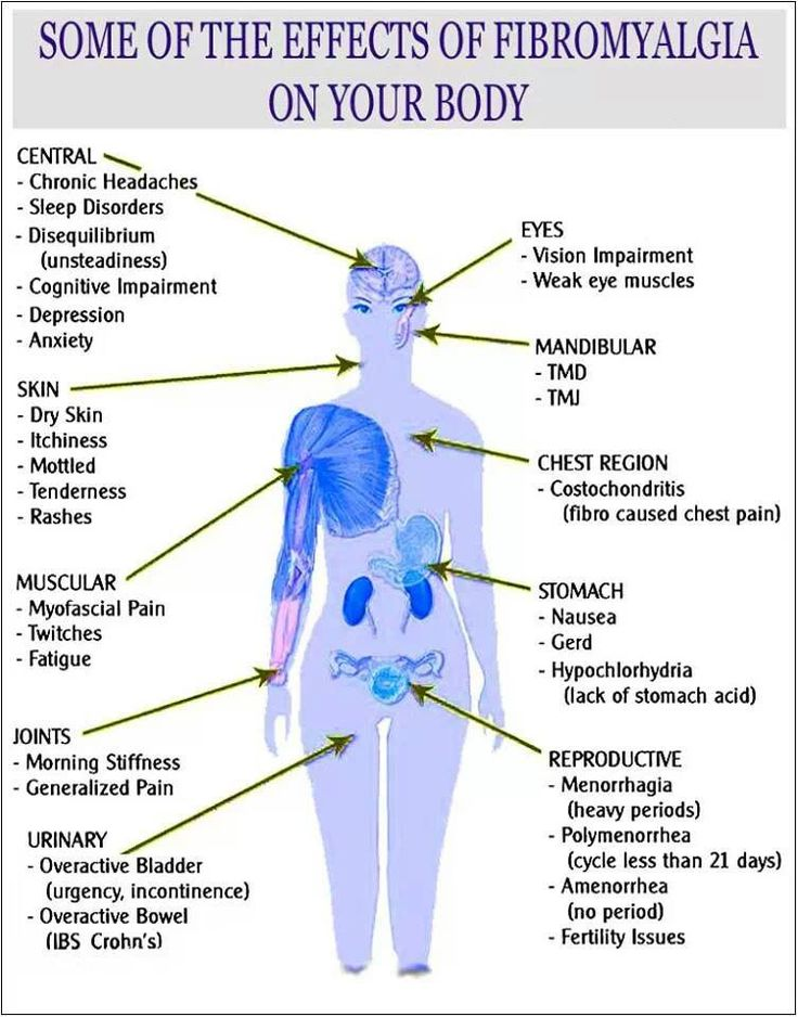 an understanding of the condition of fibromyalgia Our understanding of fibromyalgia (a condition of persistent, widespread pain and tenderness, sleep problems, and fatigue) is poor common pain relieving medicines such as paracetamol and ibuprofen are not usually considered effective in fibromyalgia.
