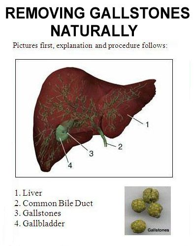 How To Remove Gallstones Naturally