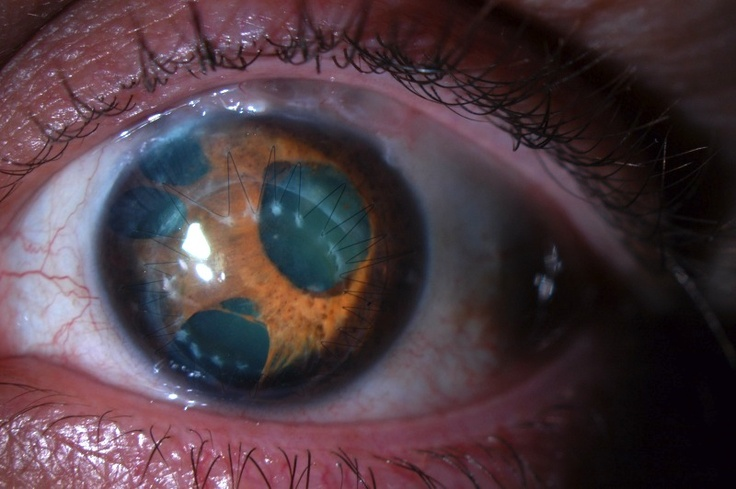 Polycoria (eye malformation of multiple irises) and corectopia (offset iris position) visible on a slit-lamp photo of a patient with Essential / Progressive Iris Atrophy. Note the corneal graft, as this patient required penetrating keratoplasty.