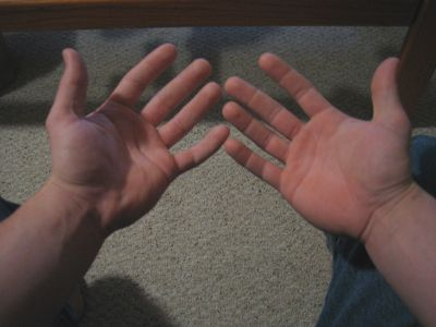 Removing calluses from hands