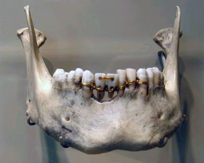 The earliest evidence of ancient dentistry, showing intricate gold work around the teeth. From an ancient Egyptian mummy dated to 2000 BCE. This mummy was found with two donor teeth that had holes drilled into them. Wires were strung through the holes and then around the neighboring teeth.