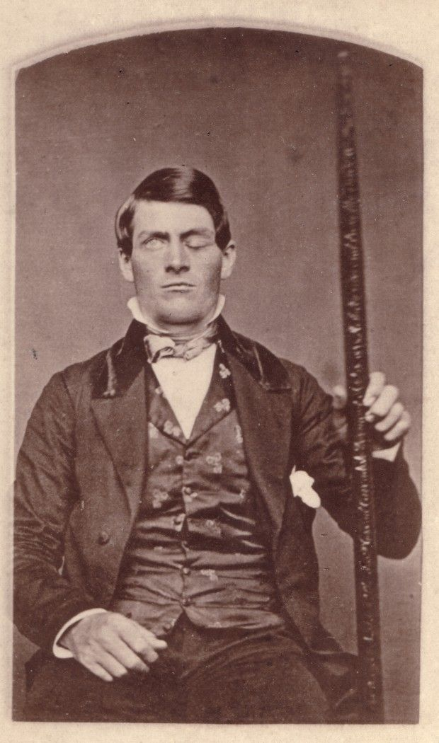 Phineas Gage and the Iron Rod which Pierced His Head - 1850