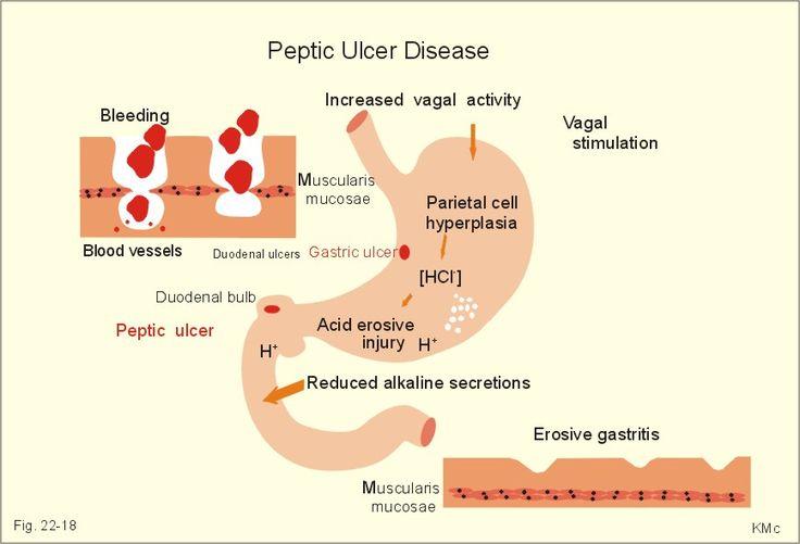 akute gastritis risikofaktoren chronische.jpg