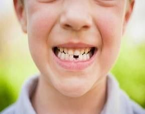dental tips for valentine's day