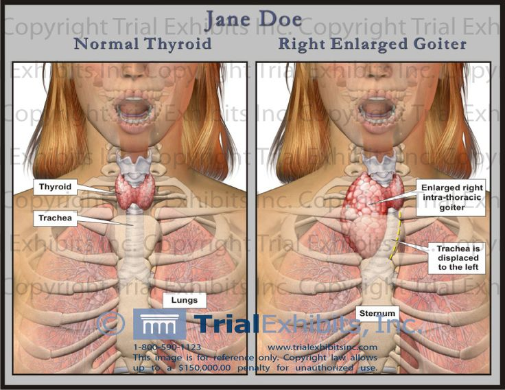 how to detect enlarged thyroid gland