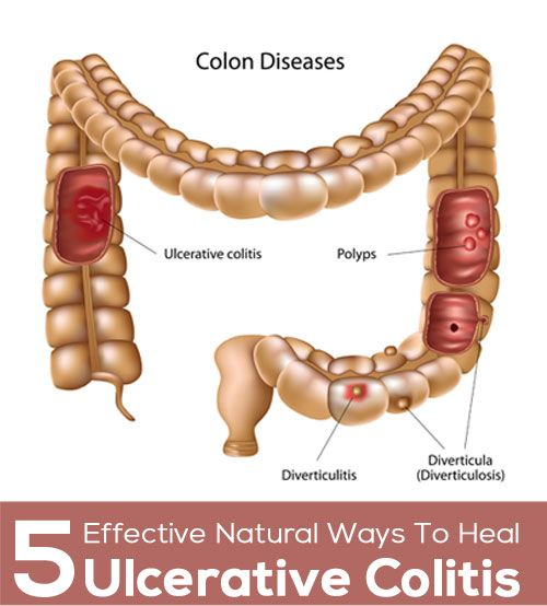 Ulcerative Colitis Diet  5 Effective Natural Ways To Heal Ulcerative Colitis