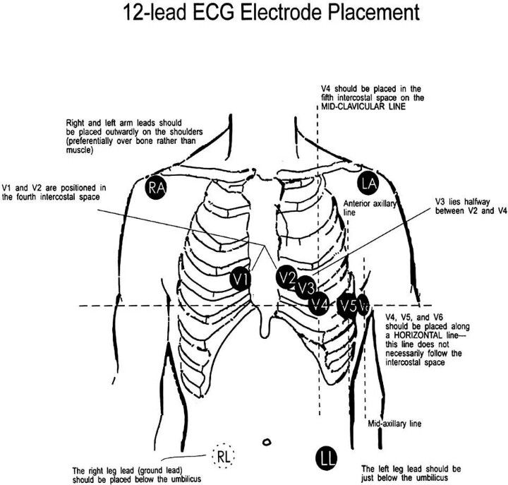 Standard 12 Lead Ecg Placement