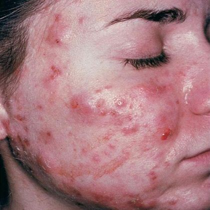 Cystic acne treatment natural home remedies