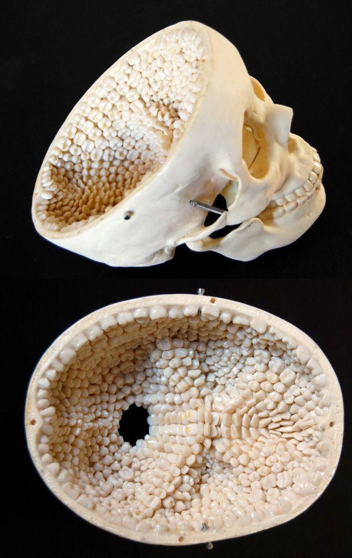Inside of skull covere...