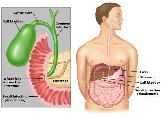 gallbladder removal food