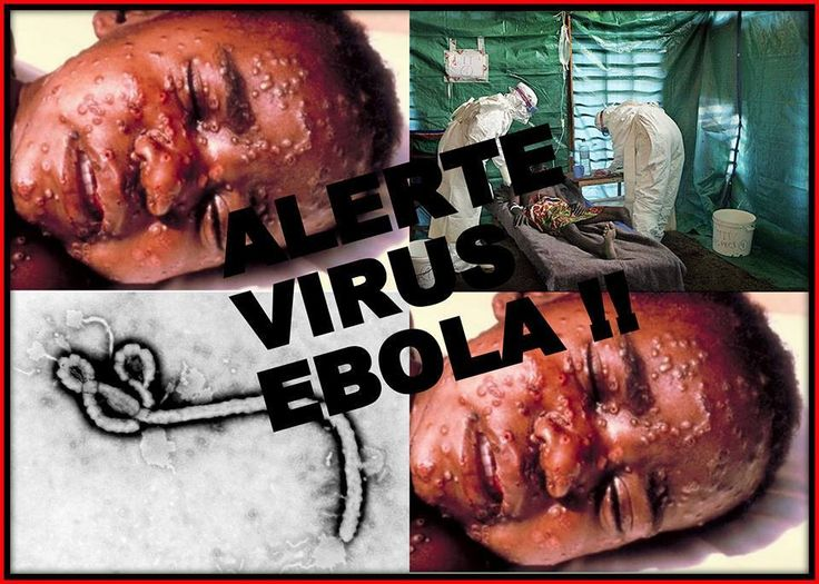 Scary Pictures Of Ebola Virus Victims - Health - Nairaland