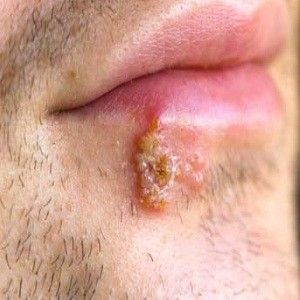 can cold sores spread campbell