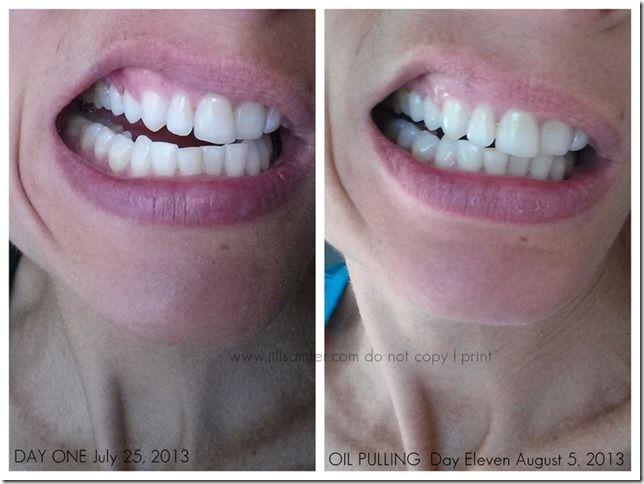 Oil Pulling Receding Gums Before And After