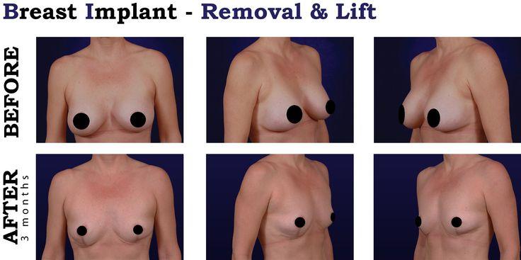 Proceedure breast augmentation