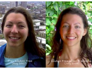 Fast weight loss on glutenfree diet benefits