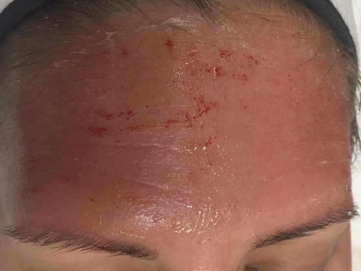 I Tried Microneedling To Stimulate Collagen In My Face—Here's What Happened