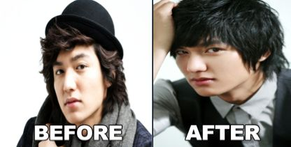 Lee min ho plastic surgery before after http www surgeryafter com
