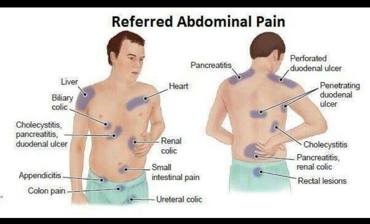Abdominal Pain Chart Male Does Your Child Often Complain About