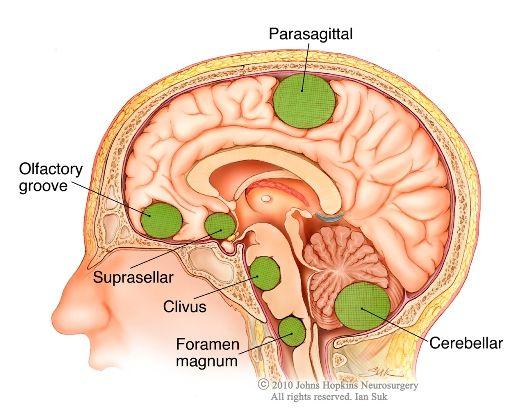 Learn about types of meningiomas | Bert | Pinterest