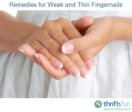 Splitting Fingernails Causes