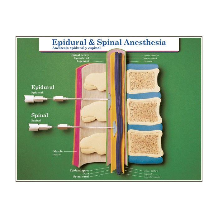 epidural anesthesis