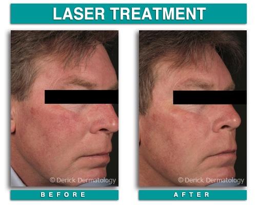 Rosacea Treatment Skin Redness - Laser Beauty