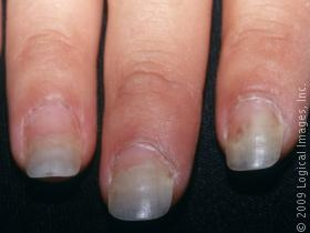 Dog Nail Disorders | Paw and Nail Problems in Dogs | petMD